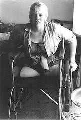 women-amputee-wheelchair