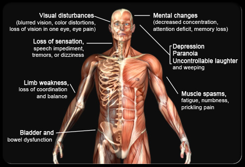 multiple-sclerosis-s11-ms-symptoms
