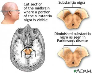 parkinsons-disease-required